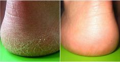 10 Fast Ways to Get Rid of Calluses and Get Baby Soft Feet - Page 11 of 11 Herbal Remedies, Home Remedies, Natural Remedies, Sore Feet, Thick Skin, Aloe Leaf, Cracked Skin, Chamomile Tea, Aspirin