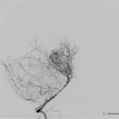 """Puff of smoke"" Angiogram of Moyamoya disease"