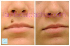 This young lady had a mole removed from her upper lip and is shown before and six months after her procedure. Mole Removal, Upper Lip, Young Women, Facial, How To Remove, Lips, Feelings, Facial Care, Face Care
