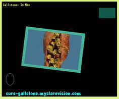Gallstones In Men 154202 - Cure Gallstone