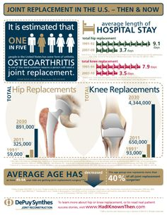 Joint replacement in the US
