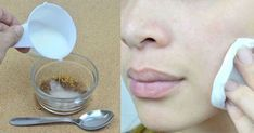 Mai bun decât ORICE TRATAMENT: amestecă aceste două ingrediente și masează fața. Scapi PERMANENT de…