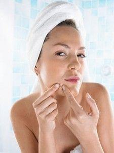 Descubre como quitar acne fácil y rápidamente con estos 5 consejos efectivos para quitar acne de una vez por todas! CLICK AQUI: www.comoquitarelacne.info/como-quitar-acne-5-consejos-para-quitar-acne-rapidamente/