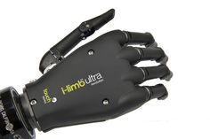 i-limb™ ultra revolution - Active hand prosthesis by Touch Bionics.