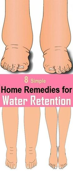 8 Best Home Remedies To Reduce Water Retention