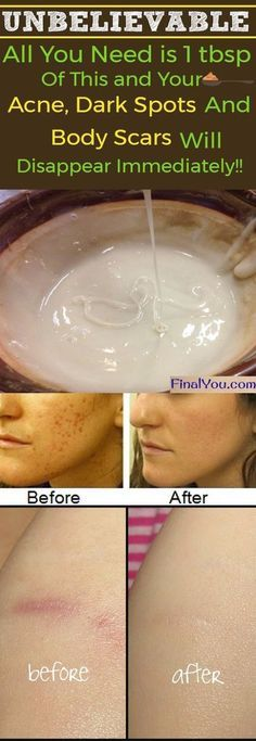 Unbelievable homemade face mask to get rid of spots, acne scars, and wrinkles - How I Got Rid Of My Body Acne Scar Treatment, Skin Treatments, Natural Treatments, Homemade Face Masks, Homemade Skin Care, Acne Remedies, Natural Remedies, Herbal Remedies, Beauty Tips