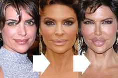 Lisa Rinna Facelift Lip Injection And Cheek Implan