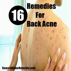 Search Home Remedy - http://clear-skinsecret.blogspot.com/2015/04/acne-diet-link-exposed-is-there-acne.html