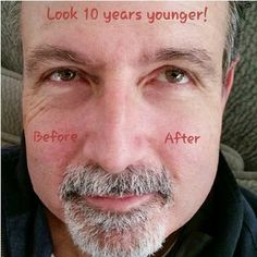HOT HOT HOT - You have to watch this video of Instantly Ageless in 2 minutes. If you have wrinkles, bags under your eye, this is the product. Foreverinyour20s.jeunesseglobal.com