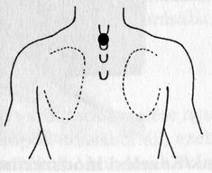 bronchitis akupresszúra pont Kids Rugs, Medicine, Kid Friendly Rugs, Nursery Rugs
