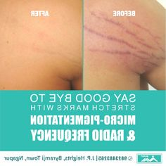 Stretch Mark Removal, Stretch Marks, Facial Pictures, Radio Frequency, All In One App, Skin Tightening, More Fun, How To Remove
