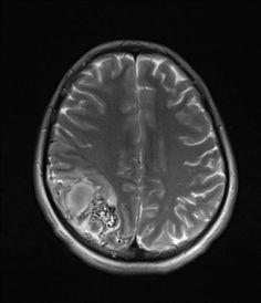 Cerebral arteriovenous malformation | Radiology Case | Radiopaedia.org