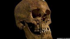 Schädel der ungefähr 7.000 Jahre alten Bäuerin aus Stuttgart, Deutschland. Es fehlt der untere rechte Backenzahn, aus dem die DNA gewonnen wurde. (Bild: Joanna Drath, Universität Tübingen)