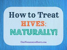 how to treat hives naturally