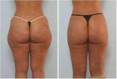 La carboxiterapia reduce la grasa localizada.