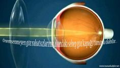 #sağlık #tümör #kirpik #kirpikkaybı Kirpik Kaybına Dikkat Edin | İK http://www.inanankalpler.net/3044/kirpik-kaybina-dikkat-edin/ Önemsenmeyen göz rahatsızlarının altındaki sebep göz kapağı tümörü olabilir.Gözde çıkan arpacık, yara, sivilcelerin önemsenmemesi gözü kaybetmek ile...