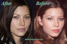 Jessica Biel Plastic Surgery of Nose Job Before and After Pictures ☺ ☻ ☺ ☂