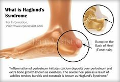 What is Haglund's Syndrome – Top Of The World Tight Achilles Tendon, Achilles Tendonitis Treatment, Haglunds Deformity, Shoulder Pain Exercises, Plantar Fasciitis Exercises, Heel Pain, Foot Pain, Feet Care, Migraine