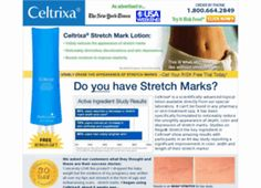 From simple questions like does Celtrixa work? The team is extremely helpful and willing to answer every query about the product. Lotion For Stretch Marks, Prevent Stretch Marks, Best Stretch Mark Creams, Anti Wrinkle, How To Get Rid, Your Skin, Anti Aging, Stretches, Moisturizer