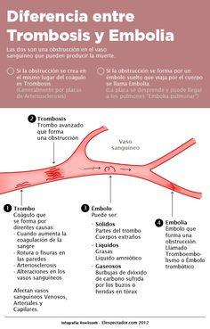 Diferencia entre trombosis y embolia ..... esto es importante aprender a entender y diferenciar.