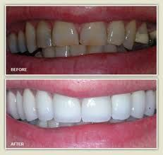 We offer esthetic white crowns or silver crowns, both of which are safe and mercury free. Crowns are permanent, durable and long lasting, and will complete your child's beautiful smile for years to come.