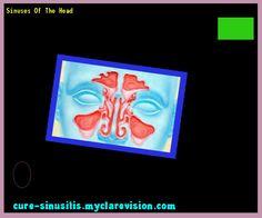 Sinuses Of The Head 135843 - Cure Sinusitis