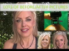 Dermarolling: The Science, How Often, How Deep & Lots of Pictures Derma Roller Results, Fractional Laser, Hair Starting, Glitz And Glam, Beauty Hacks, Beauty Tips, Good To Know, Collagen, Your Skin