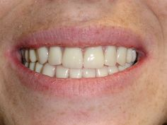 Before and after photos of actual patients of mine, see my direct website for more interesting photos. www.fldental.com