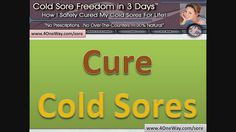 Fever blisters on the lip area. Dealing with the herpes virus. http://www.coldsoresonlips.info/ Cure Cold Sores – How To Cure Cold Sores Or Herpes Simplex Type I  Naturally