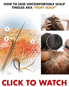 How to deal with uncomfortable scalp tingles! WOW Shampoo uses Apple Cider Vinegar to deal with scalp troubles!It exfoliates cleanses and removes flakes. Beauty Skin, Hair Beauty, Locks, Apple Cider Vinegar Shampoo, Curly Hair Styles, Natural Hair Styles, Get Thicker Hair, Conditioner, Burgundy Nails