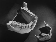 Comparing Jaw Fragments from a Prehistoric Man and a Modern Man