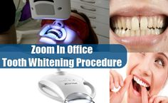 How do teeth whitening products remove stains below the enamel Explained by Dr. Marcano of Orlando Forida Zoom Teeth Whitening, Teeth Whitening Procedure, When You Smile, Your Smile, Teeth Bleaching, Remove Stains, Cosmetic Dentistry, Dental Care, Orlando