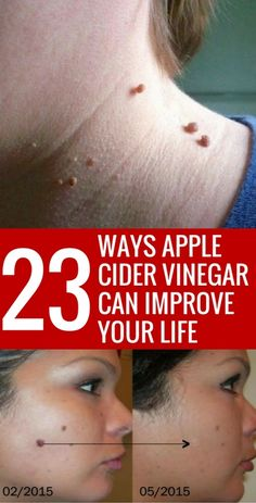 Who knew that apple cider vinegar could be used for SO many things from health to beauty to your home!?! Pinning this so that I can find it again later...