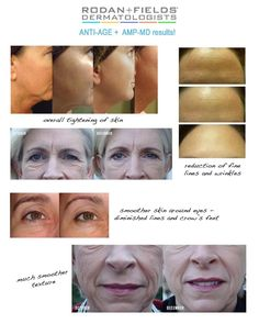 Rodan and Fields! Https://tjacoby.myrandf.com Give the gift of beautiful skin for the holidays! Ask me how to get a free antiage night serum! Toniann33301@yahoo.com