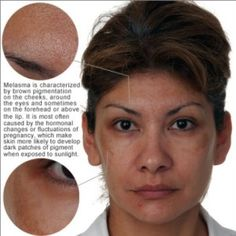 Natural Treatments For Hyperpigmentation