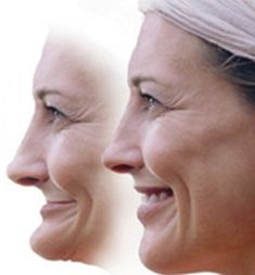Removeable Dentures Reservoir — The team at Impressions Dental Studio offers removeable dentures, an effective solution to missing teeth. Repair Clinic, Cosmetic Dentistry, Illustrations And Posters, Teeth Whitening, Melbourne, Interiors, Website, Teeth, Tooth Bleaching