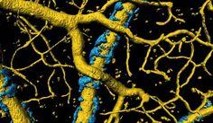 El flujo sanguíneo cerebral en la enfermedad de Alzheimer se ve afectado