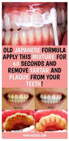 Health Discover Old Japanese Formula Apply This Mixture For 60 Seconds And Remove Tartar And Plaque From Your Teeth Health Glowpink Teeth Health Dental Health Oral Health Health Care Dental Care Healthy Teeth Health Heal Gum Health Healthy Life Teeth Health, Oral Health, Dental Health, Dental Care, Health Care, Healthy Teeth, Health Heal, Gum Health, Healthy Life