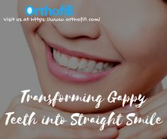 Transforming gappy teeth into straight smile. Visit https://www.orthofill.com/ #gapteethbands