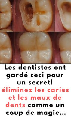 Les dentistes ont gardé ceci pour un secret! Ces produits éliminent les caries et les maux de dents comme un coup de magie… #dentistes #dents #caries #maux #dents Oral Health, Health Tips, Baking Soda Under Eyes, Best Oral, Yummy Food, Tasty, Charcuterie, Natural Medicine, Teeth Whitening