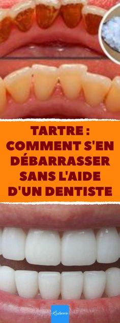 Toothpaste Holder, Emergency Dentist, Medical Design, Medical Technology, Hygiene, Hot Dog Buns, Nutrition, How To Get, Health