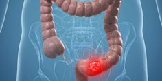 Health Tips You may need a colon cancer screening sooner than you think Colon Cancer Symptoms, Thyroid Cancer, Kidney Cancer, Natural Cancer Cures, Natural Cures, Alternative Therapies, Alternative Medicine, Cancer Rising, Cancer Fighting Foods