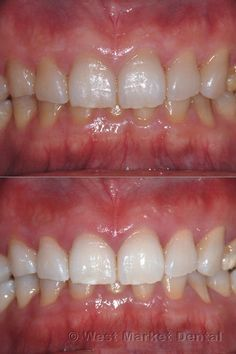 Learn about teeth whiteners, natural ways to make your smile