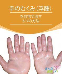 自宅でできる手のむくみ対策 手根管症候群 手根管 治す