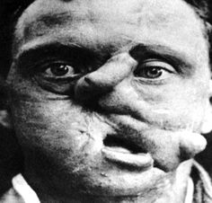 WWI Trench warfare exposed soldiers to a vast increase in head and facial injuries, leading to tremendous advancements in plastic surgery and facial reconstruction.