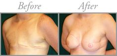 images of breast reconstruction after mastectomy - Google Search