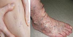 Salud y Más.: Cura y elimina definitivamente las varices o arañitas en las piernas solo con esto.