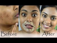 How To Get Rid Of Hyperpigmentation, Dark Upper Lip, Dark Spots & Acne Scars Naturally At Home - YouTube