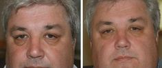 Utilize These Two Face Gymnastics Workouts To Lessen Eye Bags And To Lose Below Eye Creases