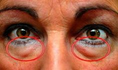 The best natural treatments to remove dark circles and bags under the eyes. Some people are more likely than others to have dark circles or puffiness in . Wrinkle Remover, Blackhead Remover, Eye Circles, Dark Circles, Vicks Vaporub, Under Eye Bags, Tips Belleza, Natural Treatments, Natural Remedies